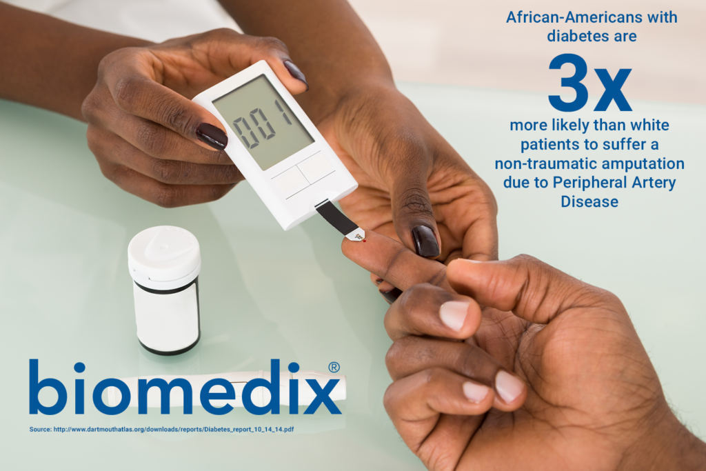 African-Americans with diabetes are 3 times more likely to suffer a non-traumatic amputation due to Peripheral Artery Disease