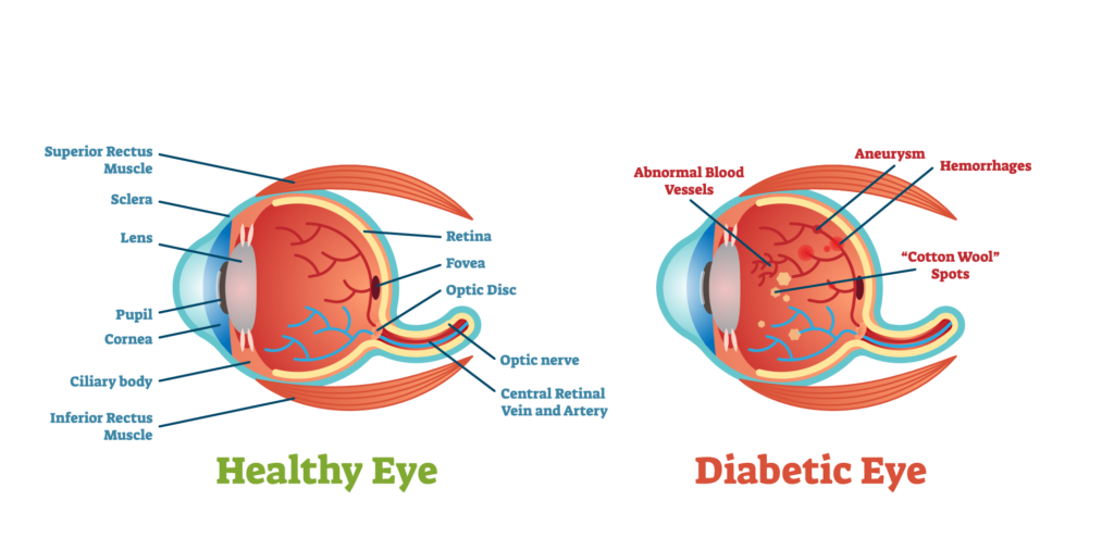 Diagram showing a healthy eye and an eye of a patient with diabetic retinopathy