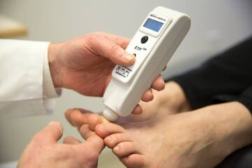 O'Brien ETF 128 being used on a patient to identify peripheral neuropathy