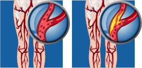 Peripheral Artery Disease diagram